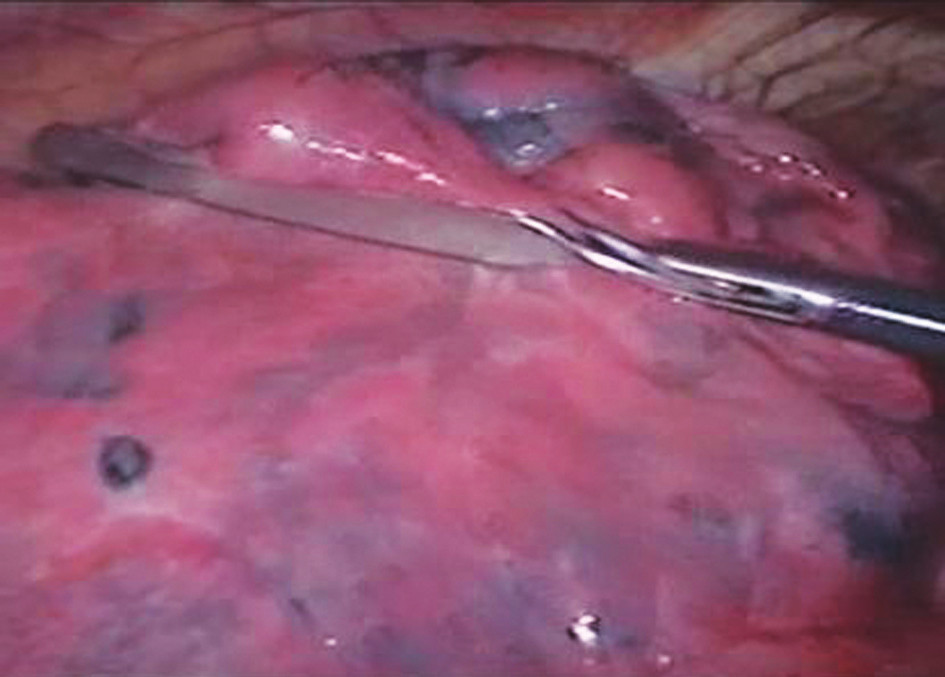 Vyšetření plicní tkáně atraumatickým grasprem Pic. 1. Examination of pulmonary tissue using an atraumatic grasper