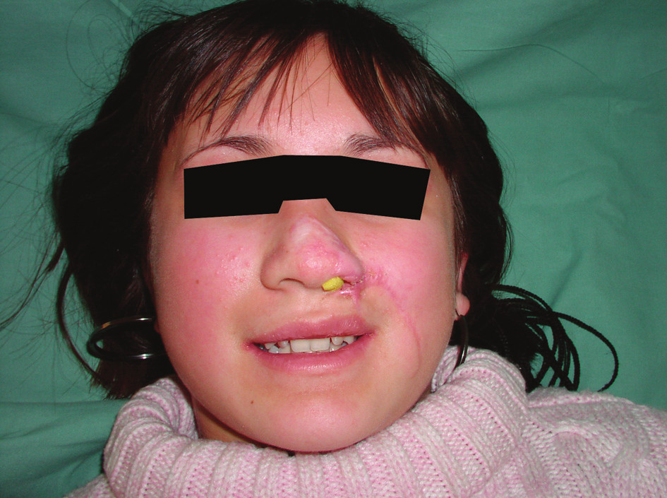 Fig. 3. Use of self-expanding material to prevent collapse of the nostril