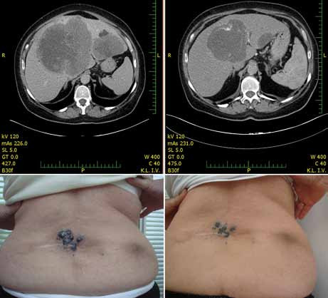 Regrese metastáz jater a kůže u pacientky po 28 dnech terapie 960 mg p.o. vemurafenibu dvakrát denně.