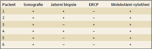 Vyšetření provedená u pacientů s PFIC2. Tab. 3. Investigations conducted in patients with PFIC2.