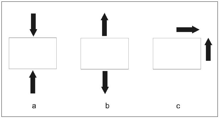 Tlakové, tahové a smykové napětí na rozhraní implantát – kost; a) tlakové napětí b) tahové napětí c) smykové napětí