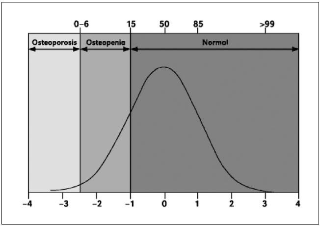 Rozložení kostní minerální denzity (BMD) u zdravých žen ve věku 30-40 let. Správná interpretace denzitometrických křivek vychází z Gaussova rozložení populace a jeho BMD. Střední křivka představuje hodnotu BMD, která přísluší vrcholu Gaussovy křivky, tzn. je to hodnota BMD, která byla získána statistickým zpracováním dat a je to hodnota, s kterou se dále pracuje při výpočtu T (Z)-score. Horní a dolní křivka v tomto grafu je potom v Gaussově rozložení interpretována jako +1SD resp. – 1 SD od Gaussova rozložení. V praxi to znamená, že pole, které je vymezeno horní a dolní křivkou pokrývá asi 68 % populace. Střední křivka potom reprezentuje optimální hodnotu BMD zdravého pacienta pro daný věk (tj. vrchol křivky Gaussova rozložení), který nemá BMD ani nadhodnocené, ani podhodnocené. Z-skore jsou definované jako hodnota standardních odchylek (SD) od průměrné BMD zdravých žen příslušného věku.