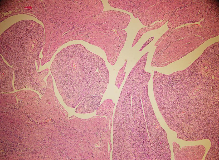 Histopatologický obraz intravenózní leiomyomatózy 1 (se svolením MUDr. J. Rychnovského)
