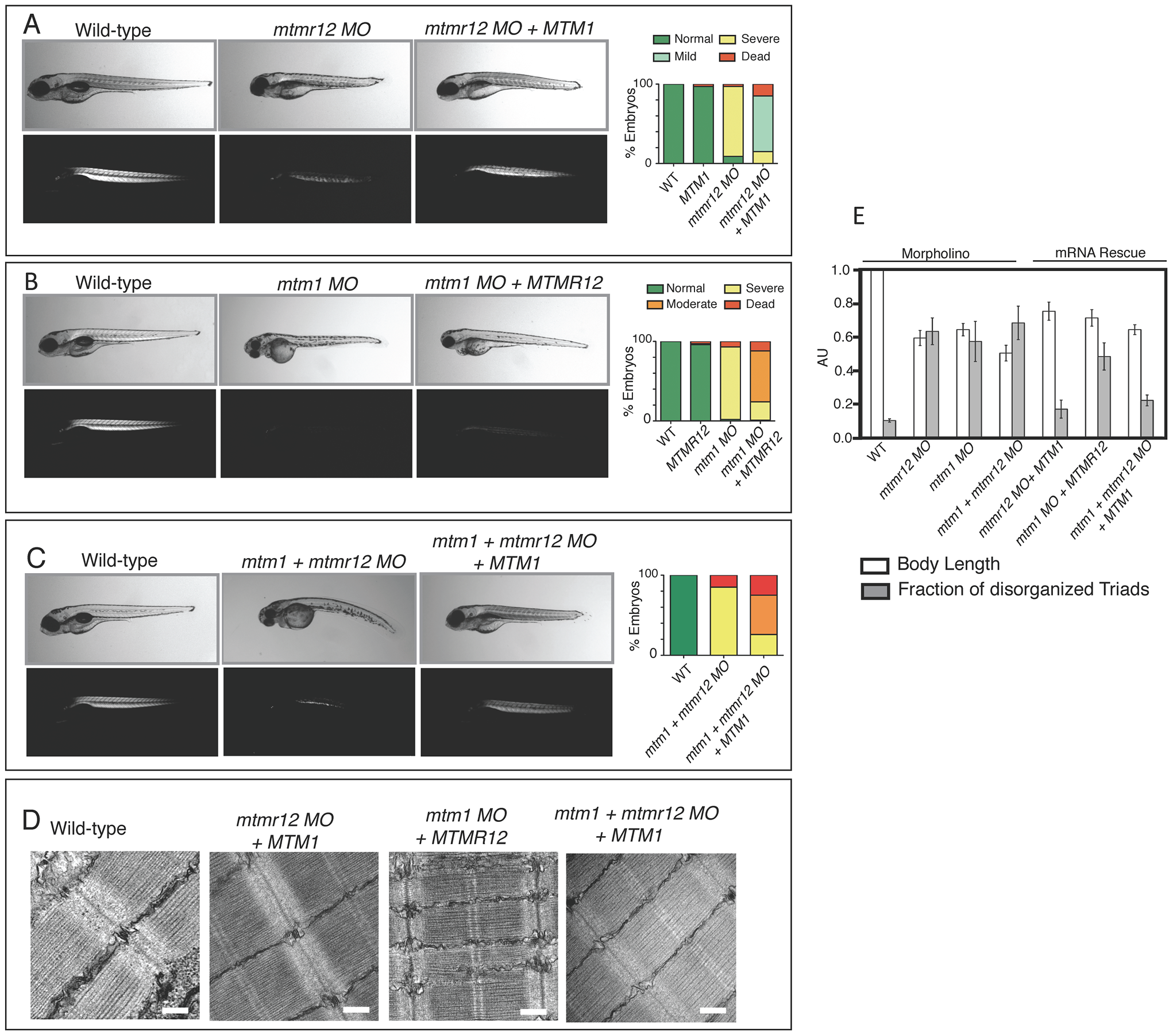 Rescue of <i>mtmr12</i> morphant phenotypes by <i>MTM1</i>.