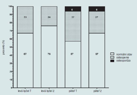 Schéma 4. Z a T skóre u 52 po sobě jdoucích DEXA skenech kyčle a páteře prováděných u mladých hypogonadálních mužů se sexuální dysfunkcí nebo infertilitou.