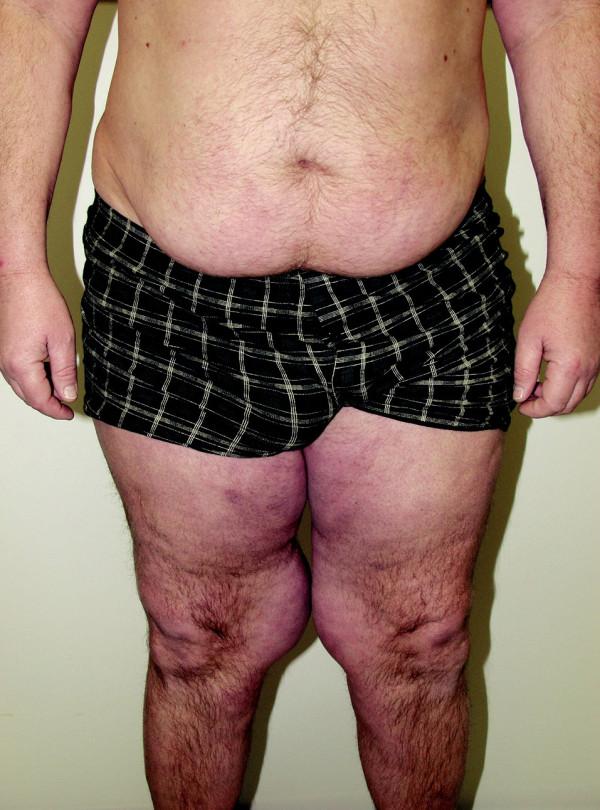 BSL – gynekoidní typ.