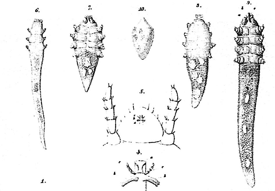 Demodex-Milben. Aus der Publikation von Simon (1848)