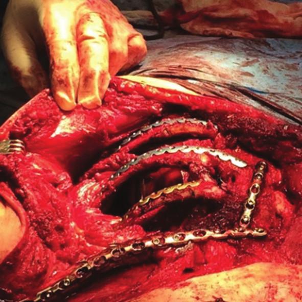 Peroperační nález Fig. 11: Surgical procedure