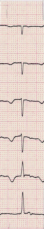 Obr. 1 A. Klidový záznam hrudních svodů (zcela diskrétní a nesignifikantní změny ST úseků)