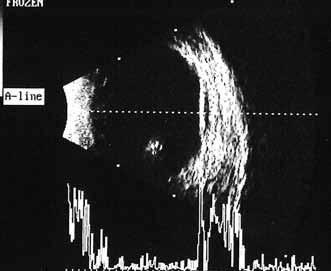 Pacient č. 2: Ultrasonografie oka levého: hemoftalmus, hyperechogení linie v oblasti zadního pólu oka odpovídající trakčnímu odchlípení sítnice.