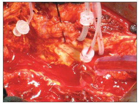 Obr. 3B. Selektivní perfuze viscerálních tepen – peroperační foto Fig. 3B. Selective perfusion of visceral arteries – intraopertive view