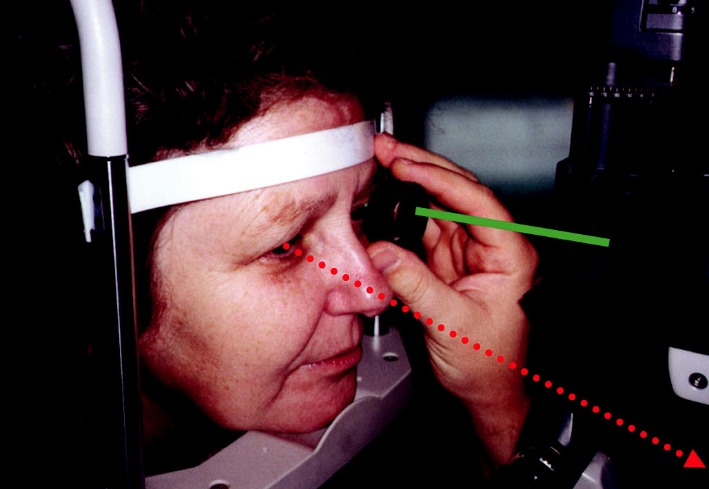 Fixace pravým okem při vyšetření VNV levého oka