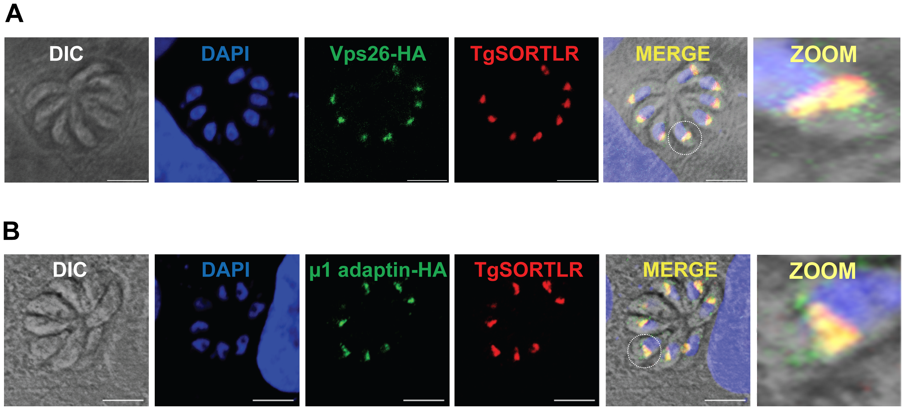 TgSORTLR co-localizes with TgVsp26 and Tgμ1-adpatin.