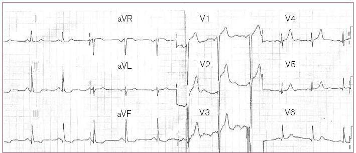 Obr. 1. Klidová EKG křivka.