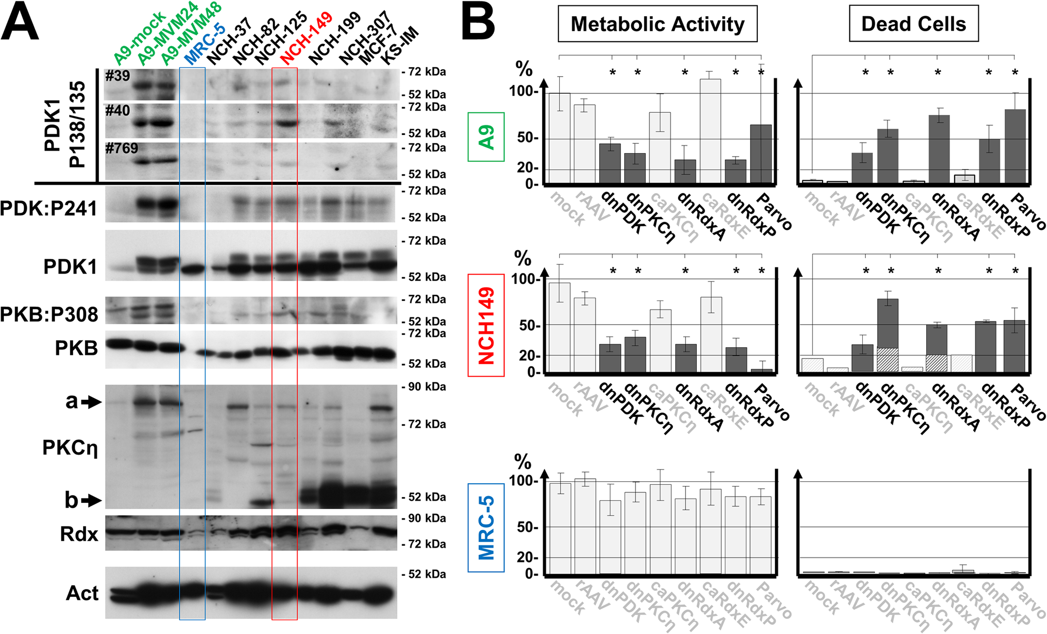 Detection of PDK1phosphoS135 in human cancer-derived cell lines.