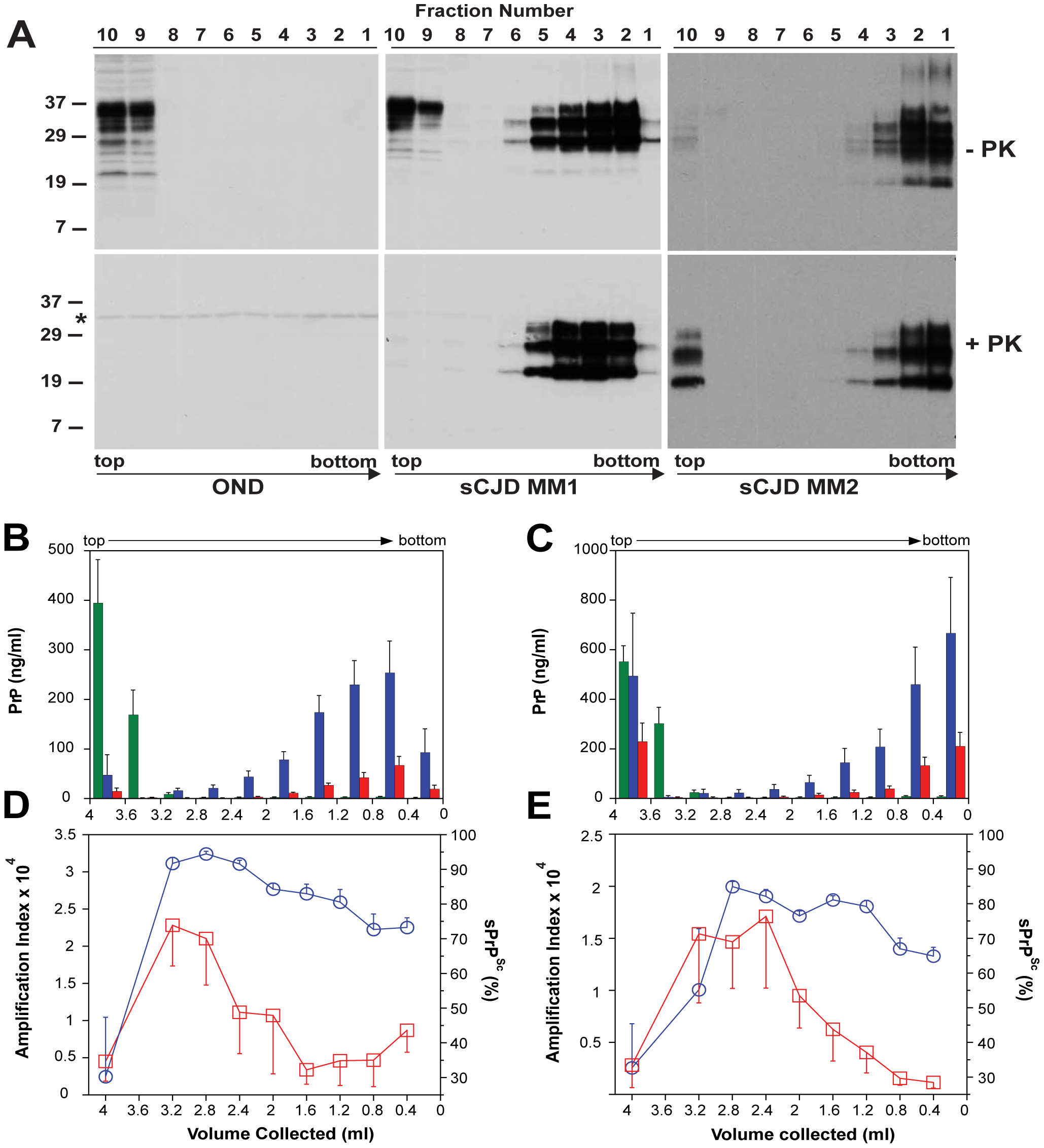 Sedimentation velocity, amplification index, and protease sensitivity of PrP<sup>Sc</sup> present in frontal cortex of patients with sCJD Type MM1 (n=6) and Type MM2 (n=6) and fractionated by ultracentrifugation in sucrose gradient.