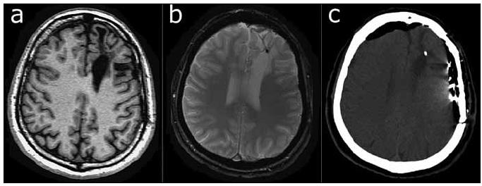 Fig. 4a. T1-weighted MP-RAGE sequence. A large post-surgical defect may be seen in the left frontal region. Fig. 4b. T2*-weighted FLASH sequence reveals a small hypointense lesion within the defect. Fig. 4c. CT image acquired one day later, following application of subdural strip and grid electrodes. A calcified (500 HU) lesion in the left frontal region is visible. Strip and grid electrodes are visible on the left, and pneumocephalus may be seen anteriorly.