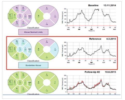 Jednotlivá měření tloušťky vrstvy nervových vláken sítnice na optické koherenční tomografii od zahájení léčby pro idiopatickou intrakraniální hypertenzi s původním obrazem městnavé papily do úplné regrese očních symptomů (pravé oko na obrázku vlevo)