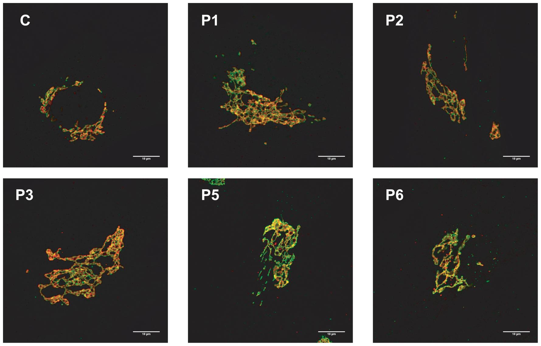 MAN1B1-deficient fibroblasts present alterations in Golgi structure.