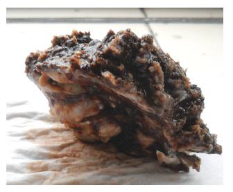 Pohľad na časť chirurgicky resekovanej kalvy kompletne prerastenej karcinomom. Excidačný nález.