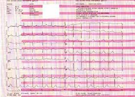 Vstupní EKG