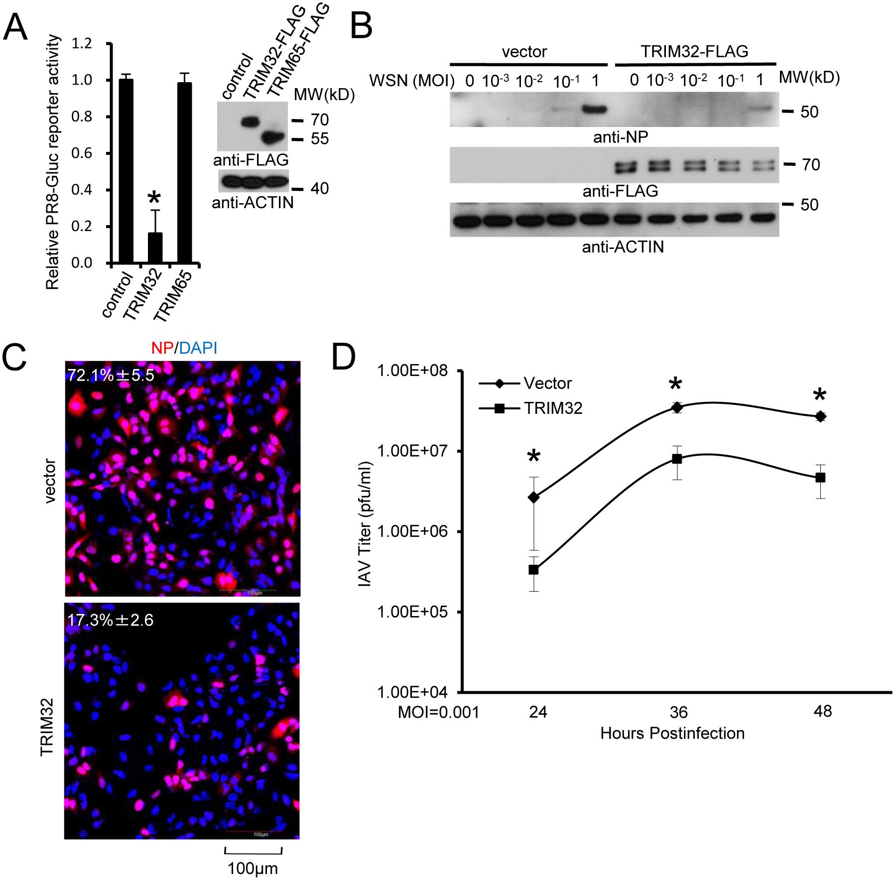 TRIM32 attenuates influenza A virus infection.