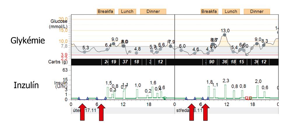Funkce prediktivního vypnutí v prevenci nočních hypoglykémií (technologie SmartGuard Medtronic). Šipky ukazují automatické vypnutí bazální dávky inzulinovou pumpou v nočních hodinách, pokles glykémie se následně zastavil, což způsobilo prevenci hypoglykémie.