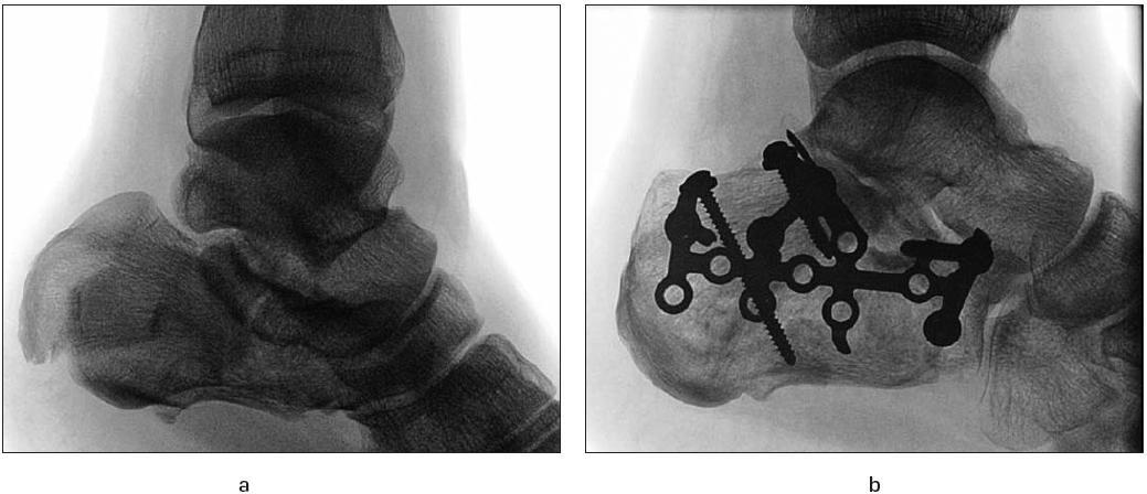 Ošetření zlomeniny patní kosti anatomicky tvarovanou dlahou: