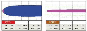 Obr. 1c Tromboelastometrické krivky pred podaním a po podaní antitrombínu pri non-overt DIK