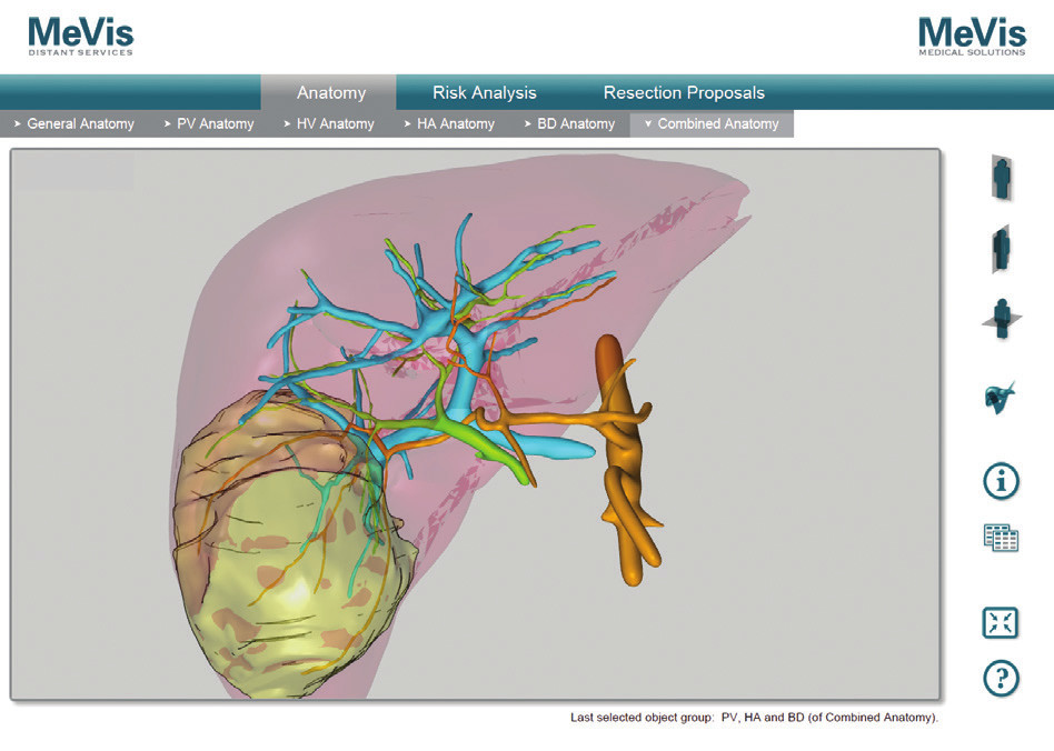 MeVis hilové štruktúry, žlčové cesty po podaní Biliscopin, pacient č. 4 Fig. 9: MeVis hilar anatomy, bile duct after BiliscopinTM administration, patient No. 4