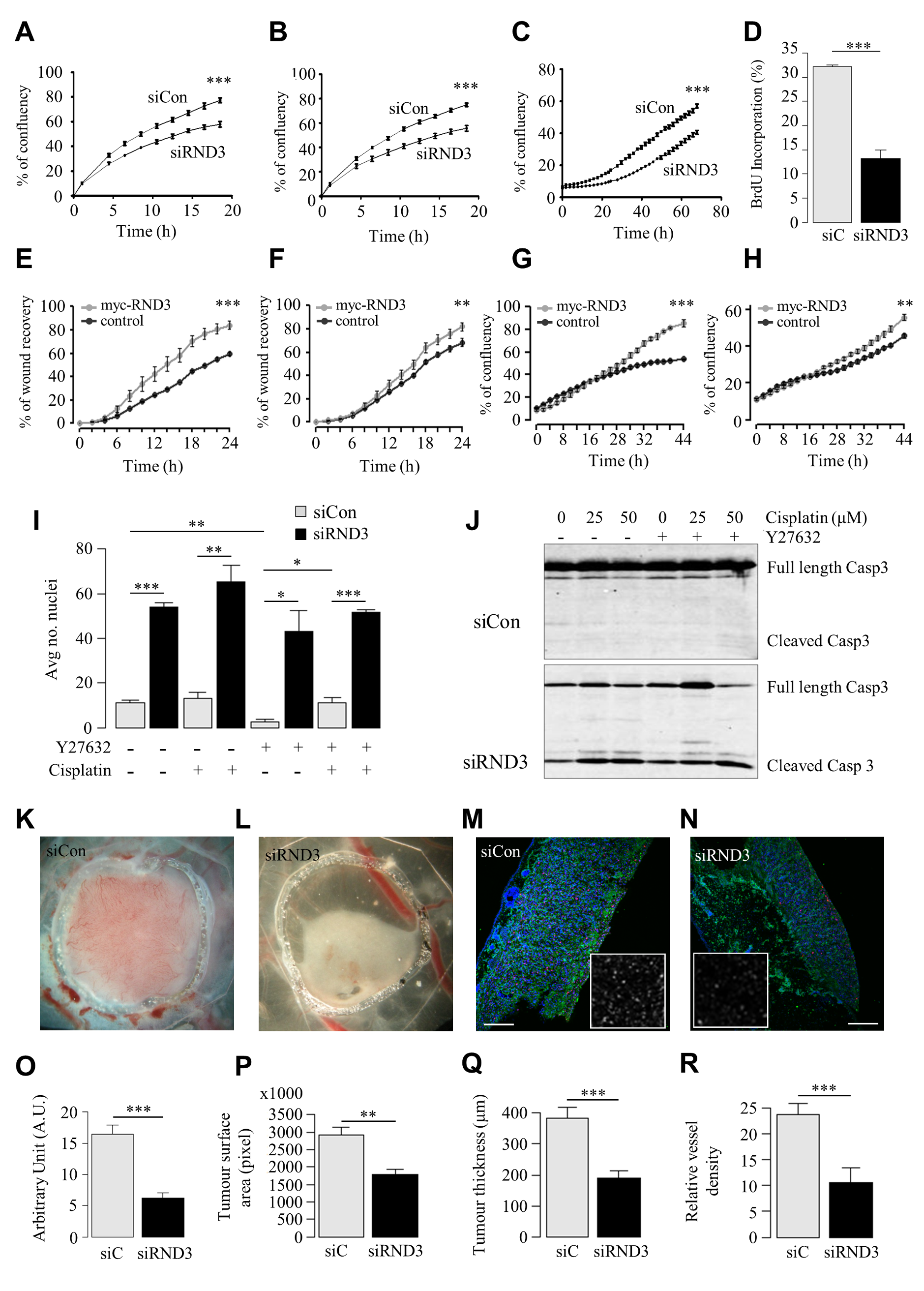 <i>In vitro</i> and <i>in vivo</i> RND3 silencing reduces cell proliferation and migration, induces apoptosis and reduces tumour mass.