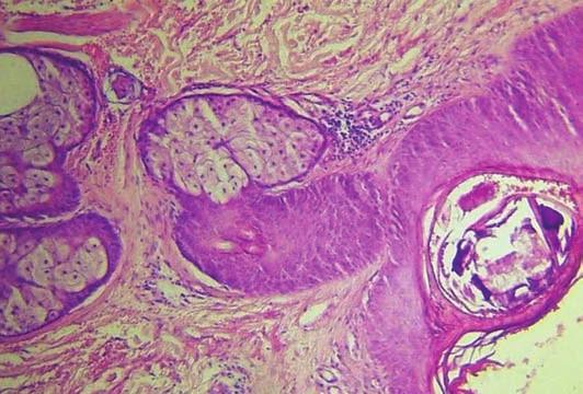 Intraepidermálně dilatovaný folikl se zbytky parazita, v okolí nevelké chronické zánětlivé infiltráty převážně lymfocyty, (zvětšení 100x)