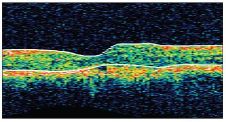 OCT snímek levého oka po 1. aplikaci ranibizumabu