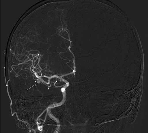 AP projekce angiografie prokazuje lokalizaci aneuryzmatu (→) mimo vlastní větvení M2/3 na arteria temporalis anterior (ATA). x – přívodná část tepny, y – odvodná část ATA.