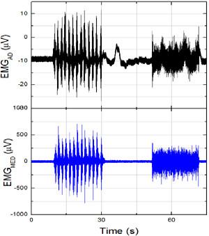 Fig. 5: Measured EMG signals used for sensor system verification.