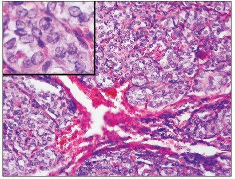 Solidní varianta papilokarcinomu vykazuje obdobně jako PDC solidně-alveolární uspořádání, jeho jádra však mají typický matnicový charakter – detail (H&E, 100krát, detail 400krát)