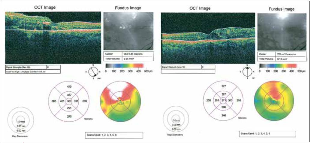 Obr. 3. Úprava optického průřezu tkání makuly znázorněná pomocí OCT nemocného z předchozí dvojice snímků pravého oka (po laserovém ošetření).