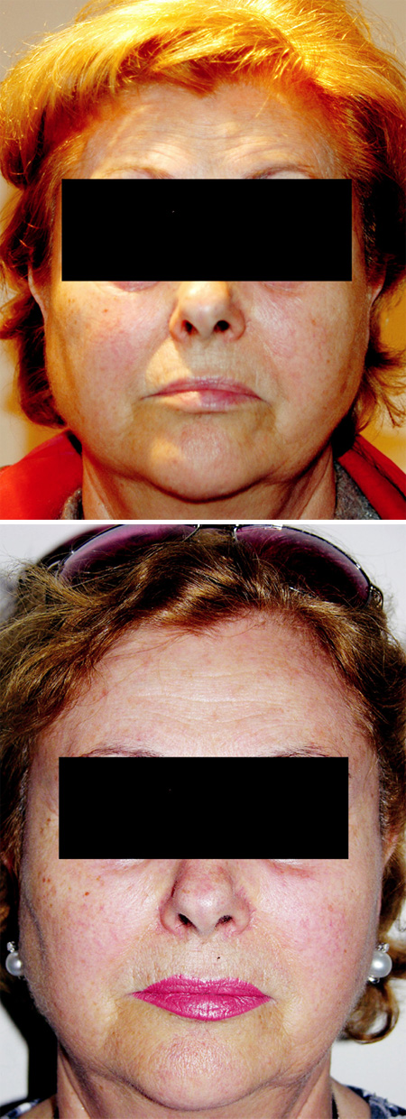 Fig. 1a. Pre-treatment image of a 65-year-old woman Fig. 1b. After 6 sessions of fractional rejuvenation and 3 sessions of IPL