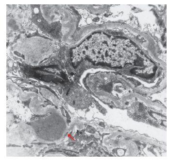 ELMI, ojedinělá depozita v záhybech GBM v blízkosti mesangia (šipka) u pacienta  s diabetickou nefropatií a IgA-dominantní postinfekční GN.