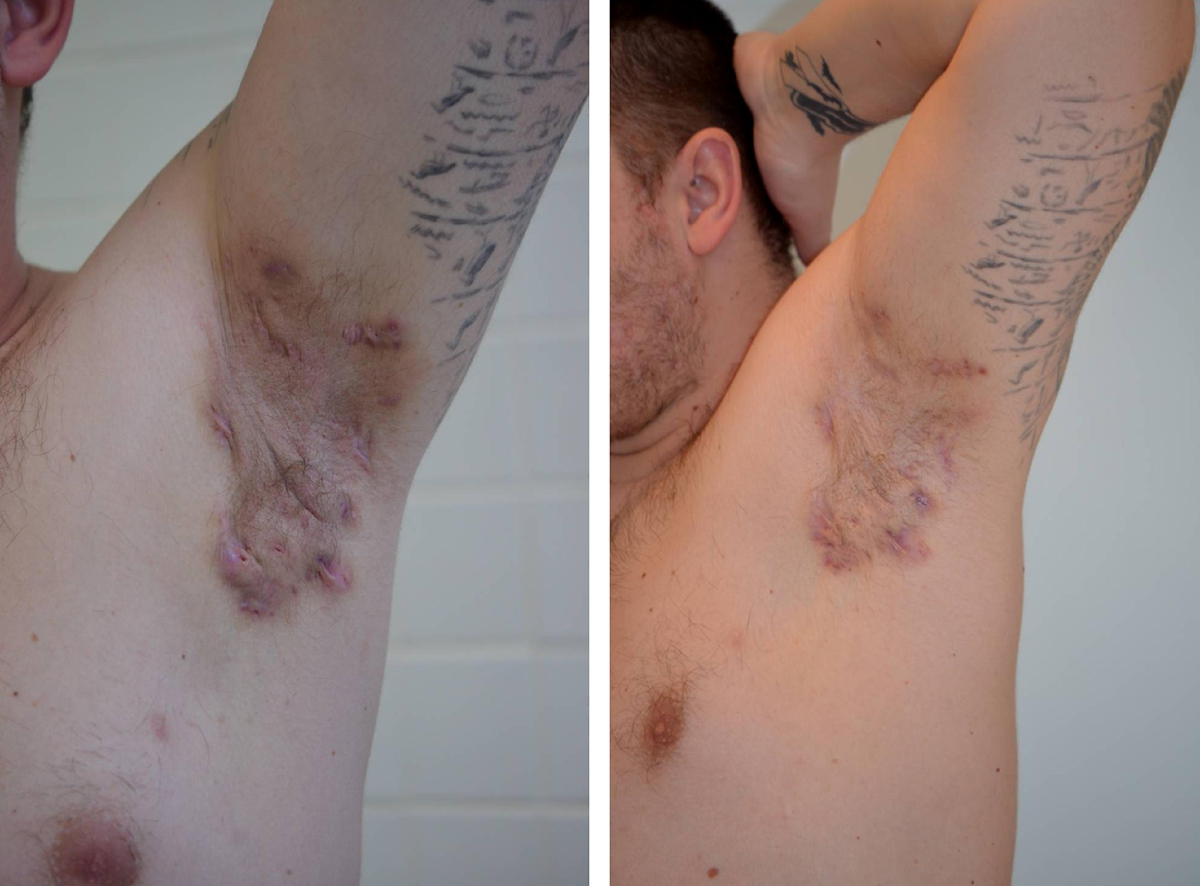 Axilární hidradenitis suppurativa – před a po 3 měsících terapie adalimumabem