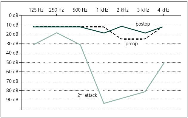 Fig. 1. Pure-tone audiogram shows the hearing status after the second attack of sudden hearing loss, after the corticosteroid treatment and after the radical surgery.