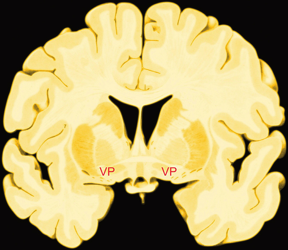 Poloha ventrálního palida, čelní řez na úrovni chiasma opticum