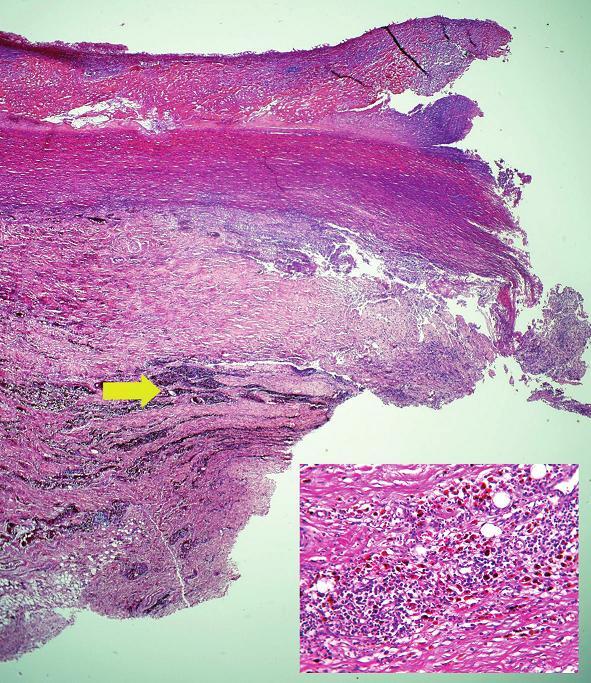 Okraj perforácie aorty s nekrózou steny s masívnymi depozitmi plazmatických buniek  a siderofágov v priľahlej adventícii (šípka + vložený obrázok) (hematoxylín-eozín, zväčšenie 20x).