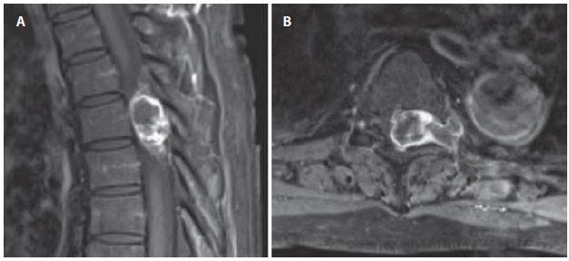 Sutkovitý neurinom v Th5–Th6 vlevo, intraspinální porce je extradurálně. Obr. 8a) MR v sagitální rovině. Obr. 8b) MR v axiální rovině. Fig. 8. Dumbbell-shaped left sided neurinoma at level Th5–Th6, intraspinal part is extraduraly. Fig. 8a) Sagittal view MRI. Fig. 8b) Axial view MRI.