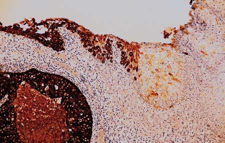 Povrchový epitel močového měchýře reaguje negativně s protilátkou proti CK 7 (v pravé části obrázku) přechází do uroteliálního karcinomu, který je CK 7 pozitivní (imunohistologie, 200x).