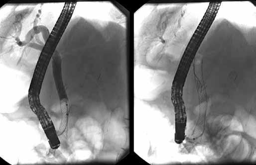 Vľavo mierne vtiahnutý biliárny kovový stent deň po jeho zavedení, vpravo stent po jeho povytiahnutí do dvanástnika. Fig. 7. On the left side is visible partially indwelled biliary metallic stent, on the right side biliary stent after its withdrawal into the duodenum.
