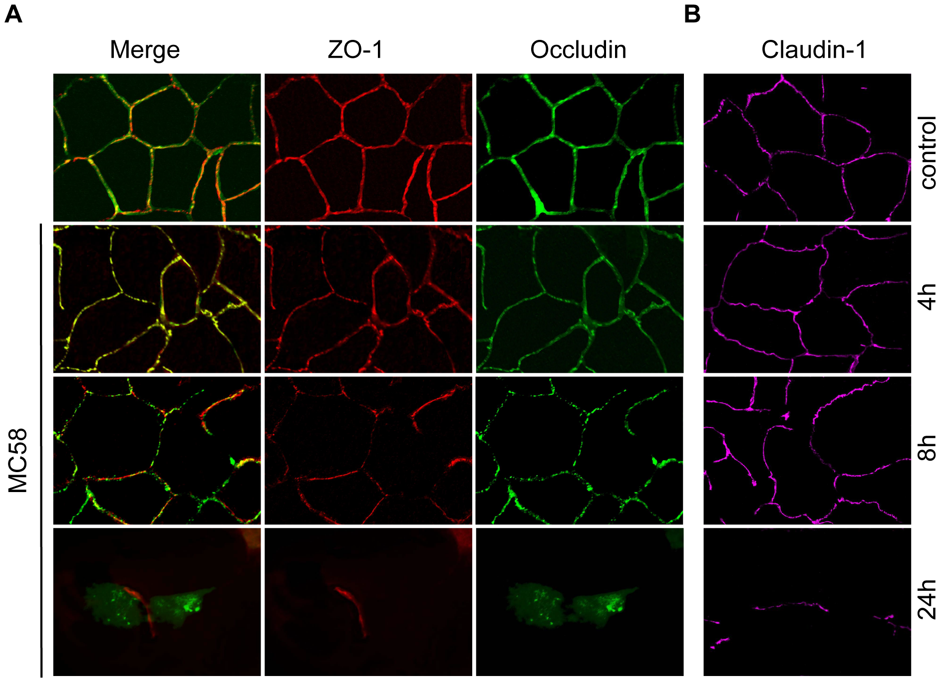 Effect of <i>N. meningitidis</i> on the tight junction proteins occludin, ZO-1 and claudin-1.