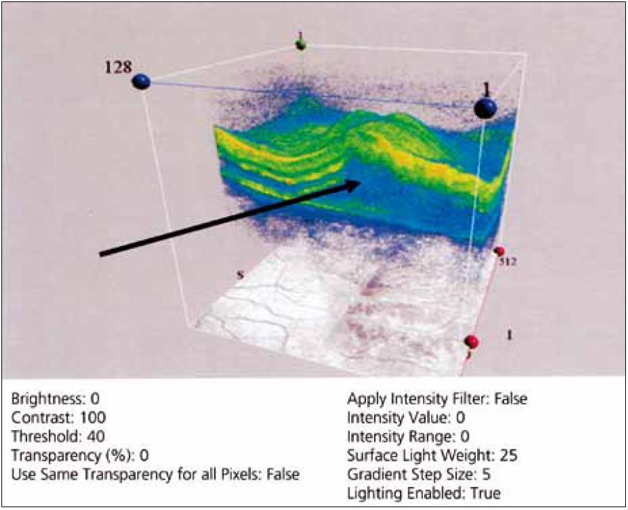 Optická kohereční tomografie sítnice v oblasti makuly pravého oka s přítomností subretinální tekutiny (šipka).