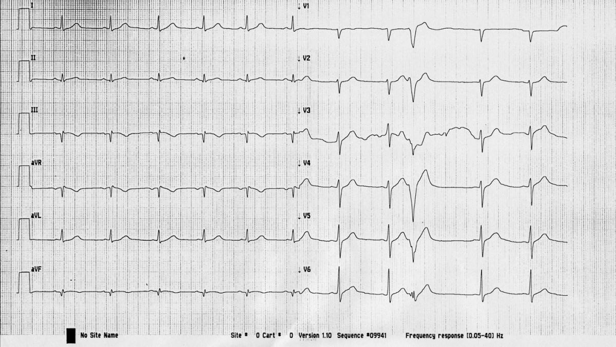 EKG křivka po rekanalizaci pravé koronární tepny