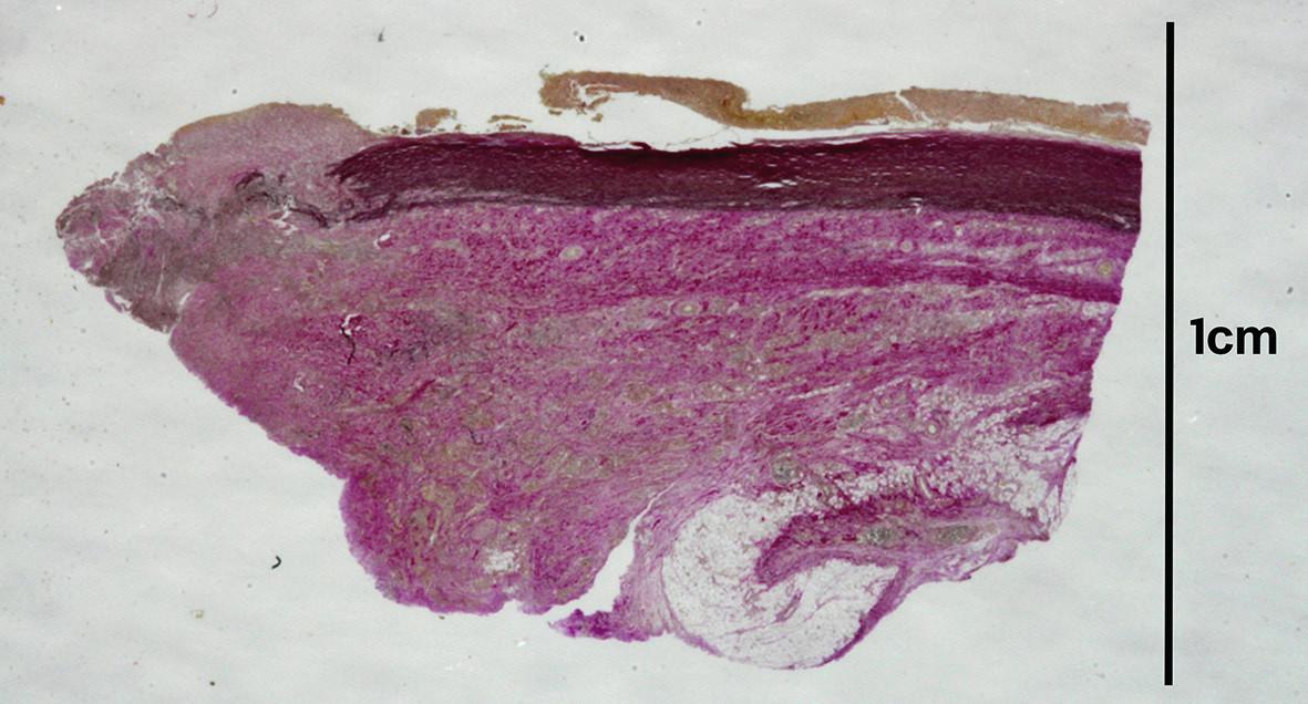 Histotopogram pseudoaneuryzmy aorty s fibroproduktívnymi zmenami (van Gieson  + elastika).